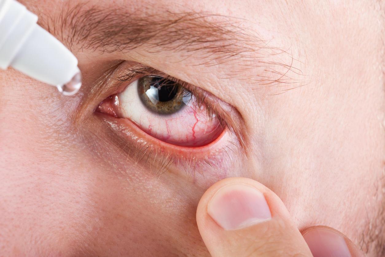 Une personne affectée par la sécheresse oculaire aura le réflexe de se frotter les yeux, ce qui empire les symptômes